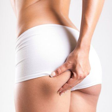 Solutions for cellulite